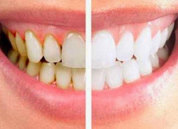 Berikut Lima Cara Bersihkan Karang Gigi Tanpa Bantuan Dokter