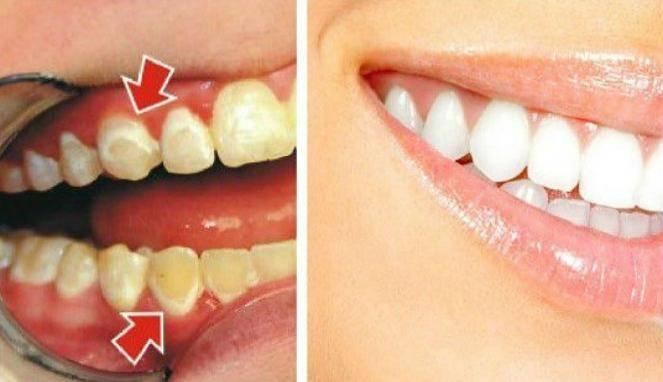 3 Bahan Alami Yang Ampuh Hilangkan Plak Gigi