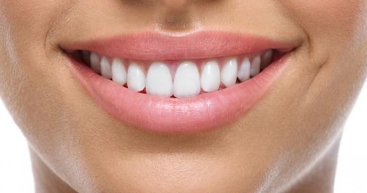 4 Cara Memutihkan Gigi Dalam Hitungan Menit Yuk Dicoba